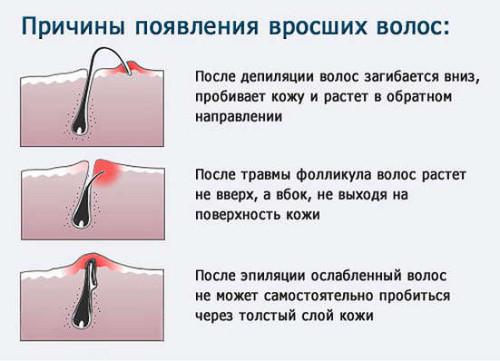 Причины появления вросших волос после депиляции (эпиляции)