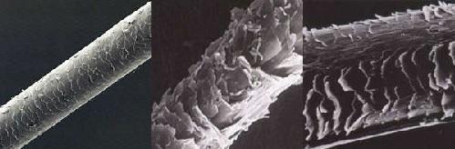 Здоровый волос человека под микроскопом