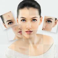 Расширенные поры кожи лица причины
