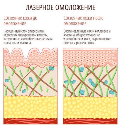 Сравнение состояние кожи до и после процедуры