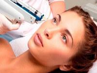 Омоложение лица с помощью биоревитализации