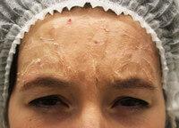 Шелушение кожи после процедуры