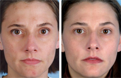 Сравнение лица до и после процедуры