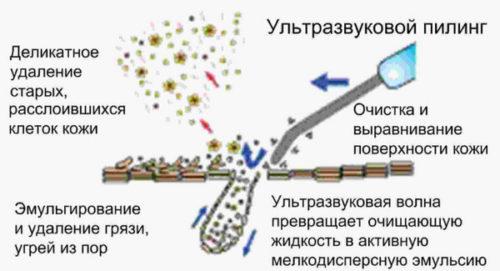 Схема действия ультразвукового прибора