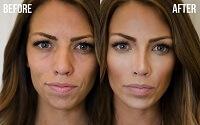 Результат контурирования лица: до и после
